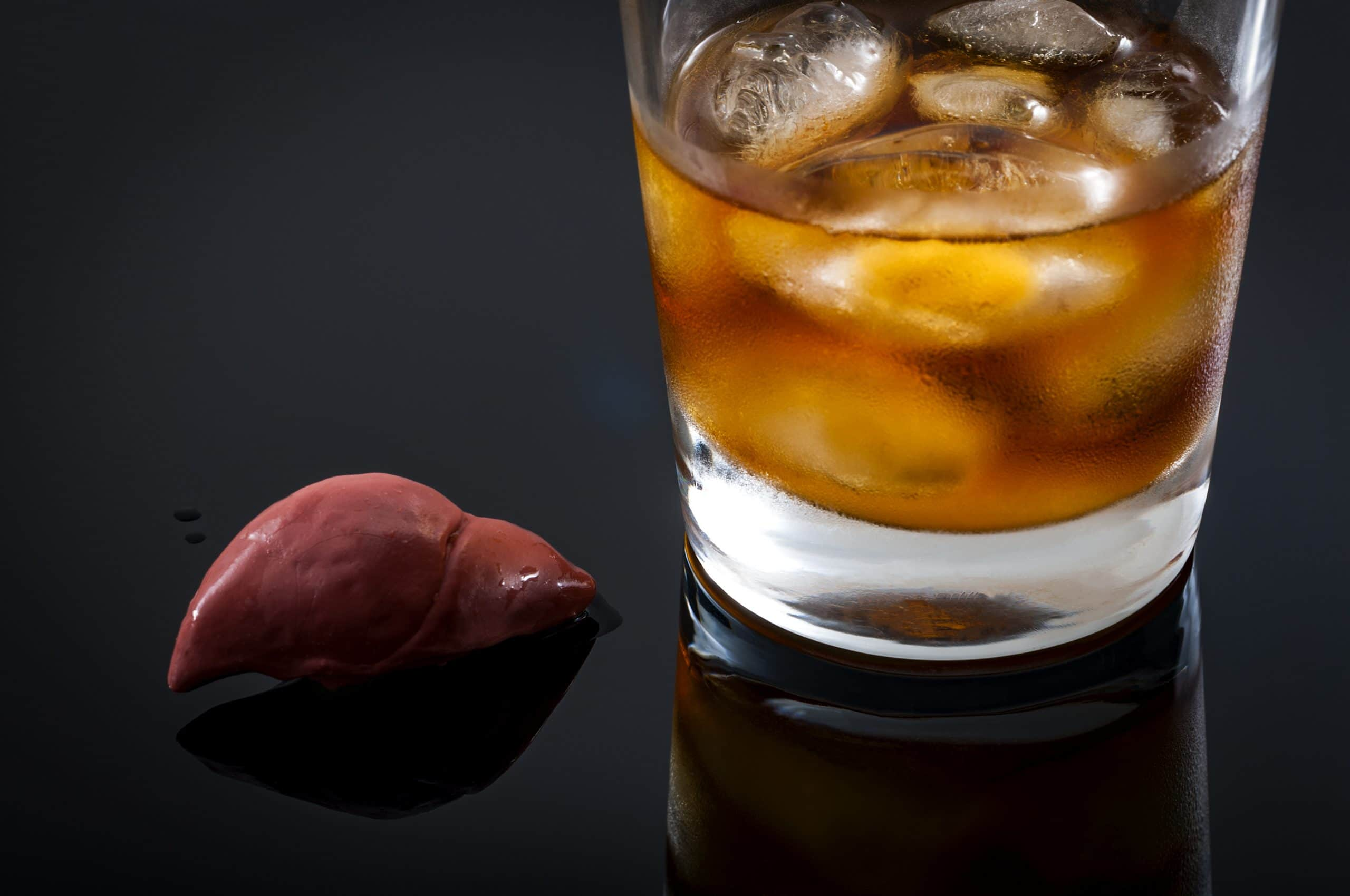 what does alcohol do to your liver